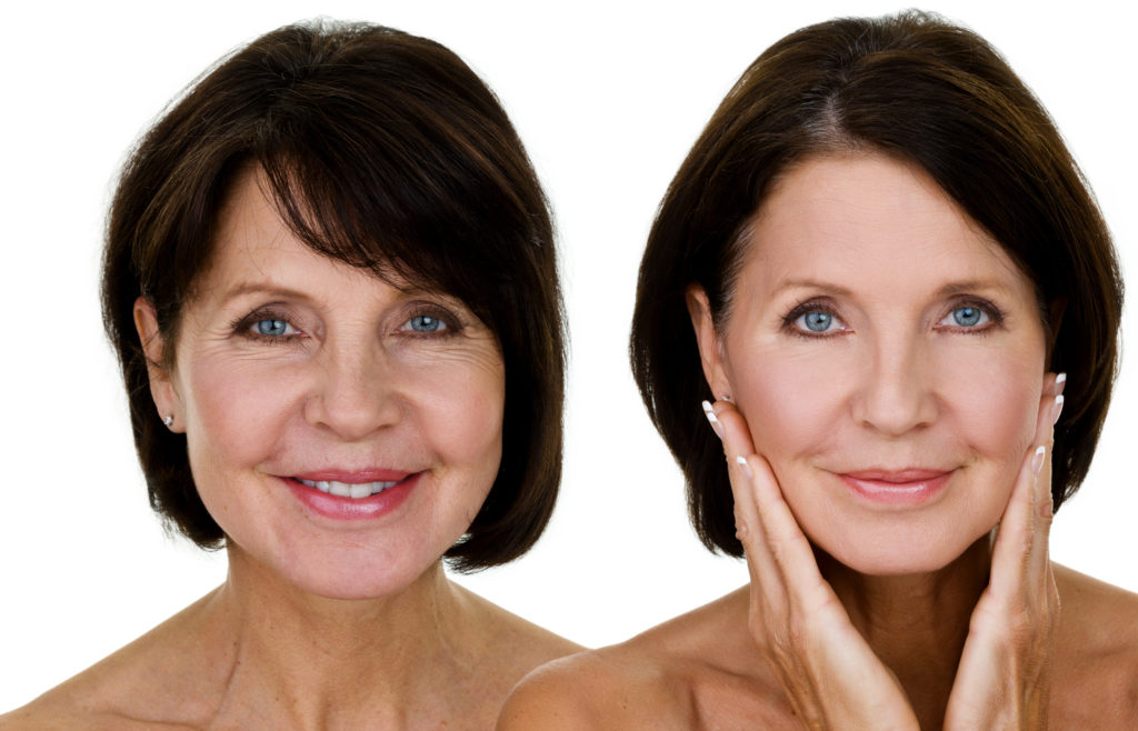 Facelift Surgery | Bershof Plastic Surgery | Denver, CO
